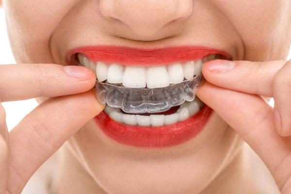 Amil Dental Cobre Clareamento Planos Odontologicos